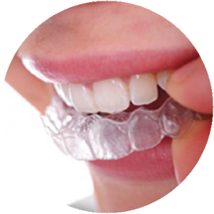 tooth whitening in bromley - step 2