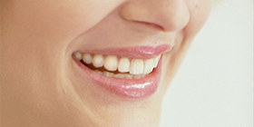 Cosmetic Dentistry in Bromley