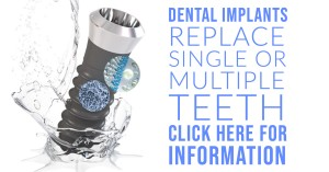 dental implants mary jones homepage