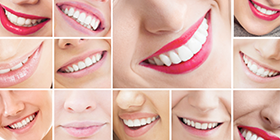 dental treatments-dental-services