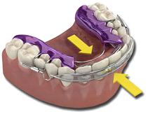 front-teeth-inman-aligner